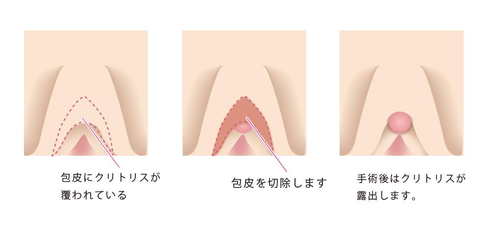 けい 傷口 2 ほう 手術 週間 写真でわかる包茎手術
