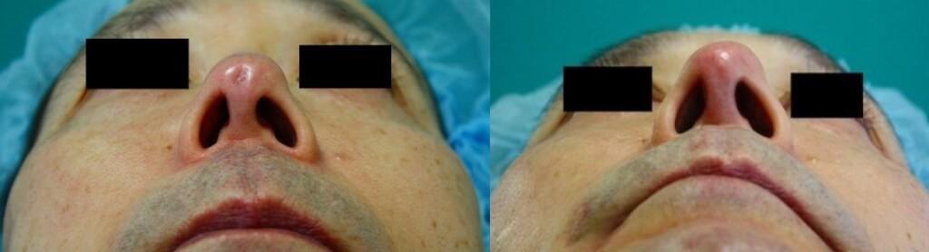 上記画像:左は治療前、右は治療後1か月の状態。