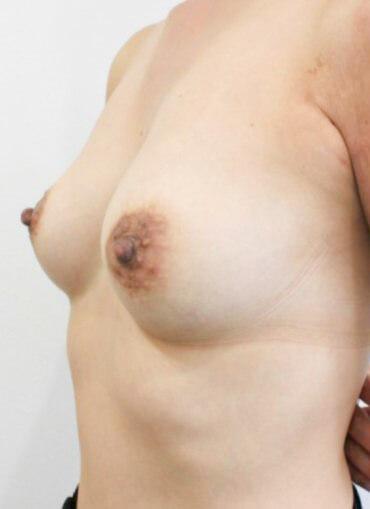 アクアフィリング豊胸治療後