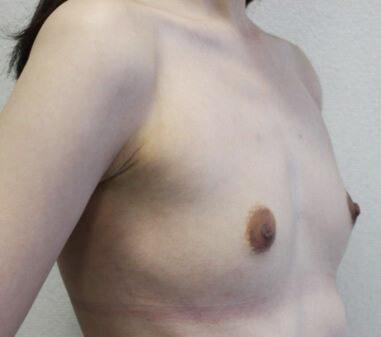 アクアフィリング豊胸治療前
