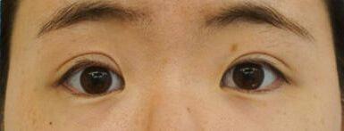切らない眼瞼下垂治療 治療後