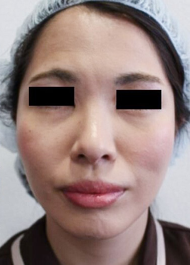 スプリングスレッドフェイスリフト手術の術後3か月の状態