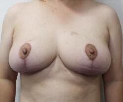 乳房縮小手術3か月後